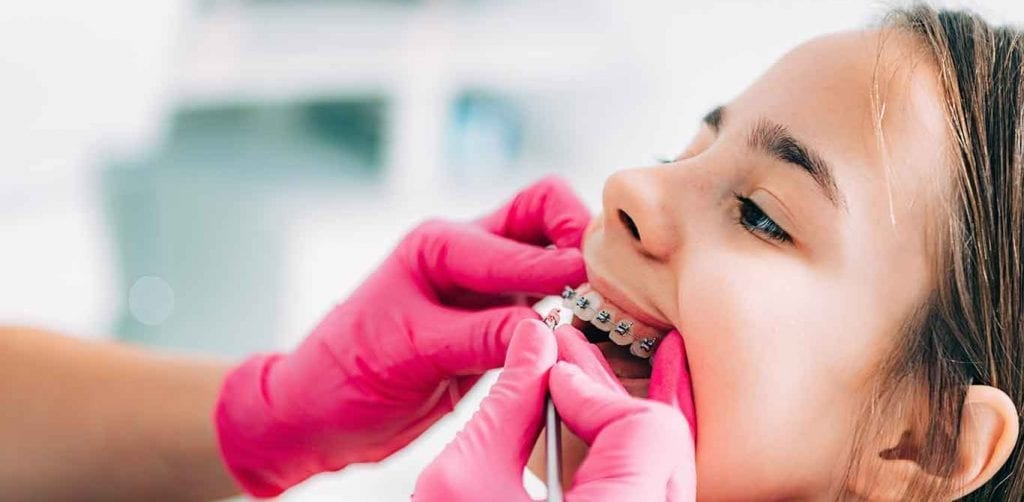 Dental Braces Ottawa - Sunset Dental Centre